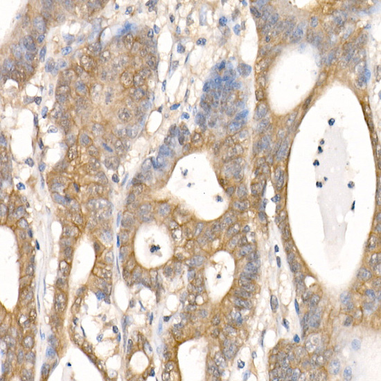 ABclonal:Immunohistochemistry - [KO Validated] β-Catenin Rabbit mAb (A19657)