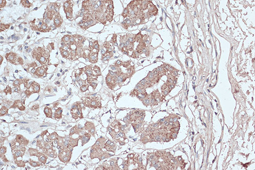 [KO Validated] MAP1LC3B Polyclonal Antibody