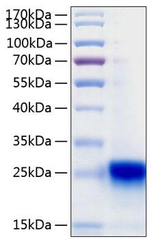 (PDF) Optimizing storage stability of lyophilized
